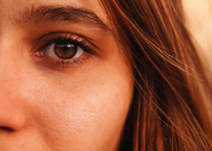 How to Avoid Dark Circles Around the Eyes